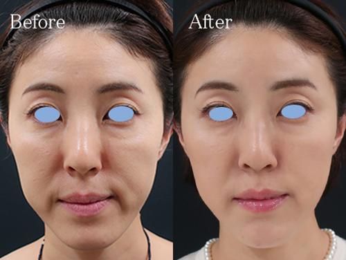 【動画】浜崎あゆみの顎が尖り過ぎているのは加工か整形かどっち?比較画像で検証してみた!